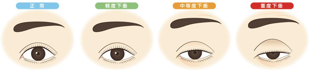 眼瞼下垂治療は一つではない!~タイプによって異なる眼瞼下垂の手術法~