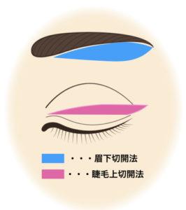 【眉下切開法(上眼瞼リフト)】まとめ:自然な若返りが可能〜1.適応、2.デザイン、3.手術など