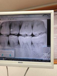すべては予防が大事!〜【歯】の治療行ってきました〜