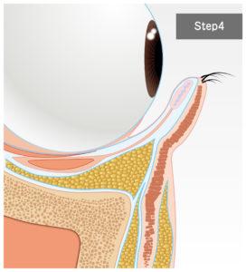 目の下のクマ治療(脱脂+脂肪注入)について