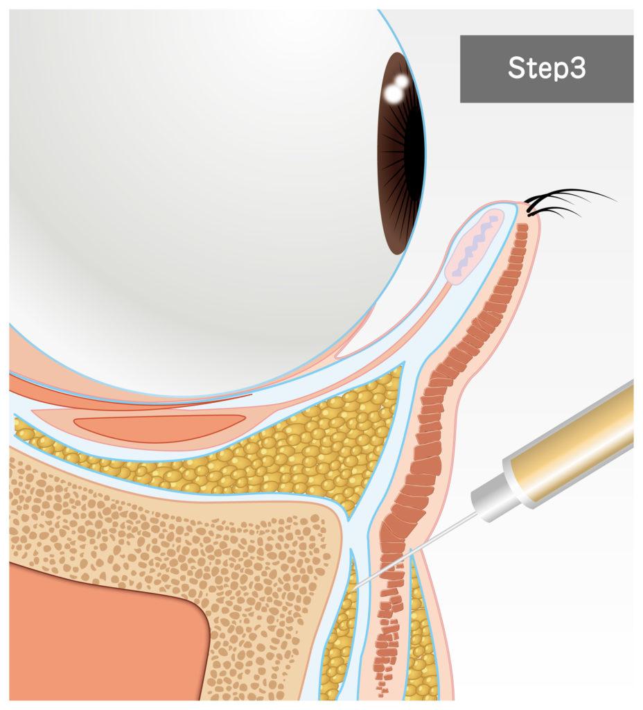 目の下の脂肪移植・脱脂、入れすぎ・取りすぎなど失敗後の修正治療