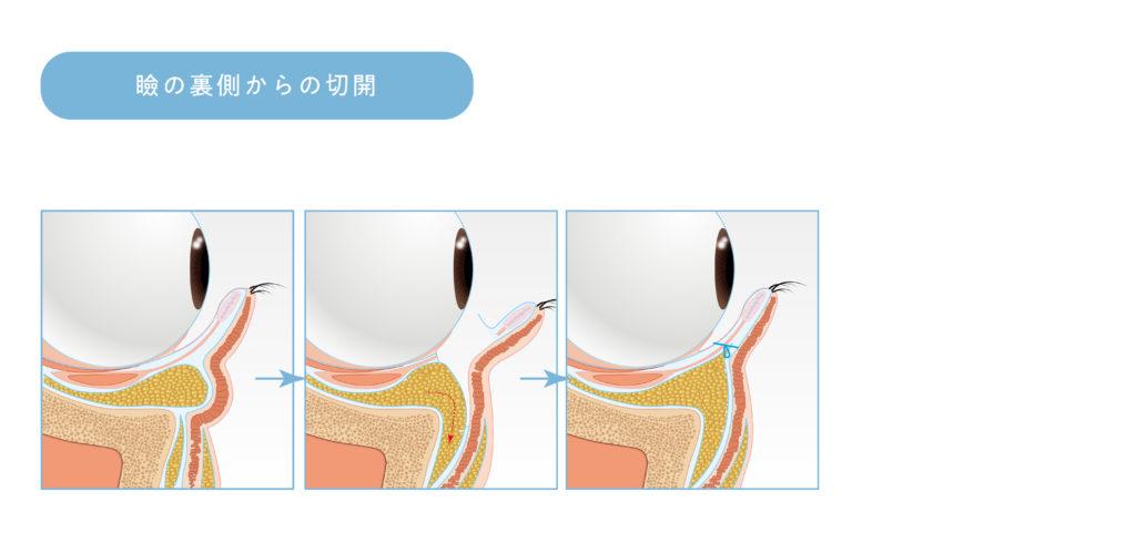 瞼の裏側から切開